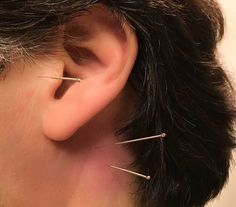 Acupuncture Quiets Tinnitus ... (2/2016) Yiming and GB12 with SI19 are needled here.