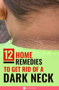 A glowing face and a dark, tanned neck – definitely not a good combo! Time to pamper your dark neck with these simple yet effective home remedies. Dark Skin Around Neck, Dark Underarms Remedy, Dark Armpits, Dark Neck Remedies, Vaseline Uses For Face, Beauty Tips For Glowing Skin, Beauty Skin, Black Skin Care, How To Exfoliate Skin