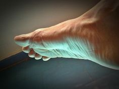 When feet have poor circulation, a small wound or skin change can quickly become a large problem. If a #footulcer starts to form, see a professional at once! http://www.footcarespecialistspc.com/blog.html