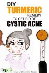 Amazing DIY Turmeric Remedy to Get Rid of Cystic Acne