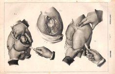 Surgery, Amputation, Medical Print, Antique Print, 1846 by IntaglioPrintsMaps on Etsy Medical Anatomy, Lore Olympus, Vintage Medical, Medical Illustration, Anatomy Art, History Photos, Antique Prints, Print Pictures, Surgery