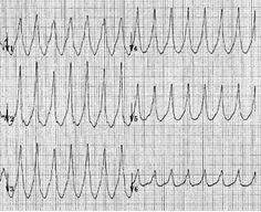 Positive concordance in VT Ekg Interpretation, Emergency Medicine, Critical Care, Medical Mnemonics, Positivity, Cardio, Nursing, Blog, Knowledge