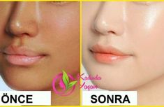 Tamil Beauty Tips for Face Whitening at Home Remedies - Face Pack for Glowing Skin ⋆ Whitening Face Mask, Natural Skin Whitening, Natural Skin Care, Anti Ride, Skin Brightening, Fair Skin, Skin Treatments, Natural Treatments, Glowing Skin