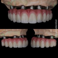 Replacement of upper missing teeth with dental implants and a fixed implant zirconia bridge. Affordable Dental Implants, Missing Teeth, Perfect Teeth, Teeth Care, Oral Health, Dental Care, Dentistry, Clinic, Front Teeth