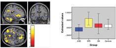 Autistic Brains Func