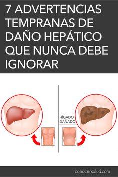 7 Advertencias tempranas de daño hepático que nunca debe ignorar #salud