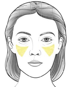 "The ""skinny"" on facial fat transfer"
