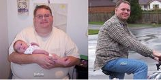 Can weight loss surgery reduce the effects of Type 2 Diabetes?  http://www.centerforweightlosssurgery.com/