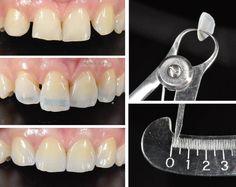 Giá làm răng Veneer sứ là bao nhiêu tại NK Paris? Mức giá đó có phù hợp với giá trị mà bạn sẽ nhận được trong tương lai không? Hãy cùng tìm hiểu qua bài này
