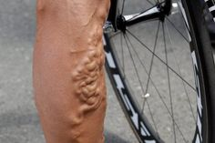 Even professional bikers get varicose veins. by Junction Vein Center Varicose Veins Causes, Varicose Vein Remedy, Cough Remedies, Home Remedies, Natural Remedies, Belly Fat Burner Workout, Cool Piercings, Japanese Water, Love Natural