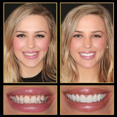 Is your smile photo ready? Let The Cosmetic Dentists of Austin help! Call 512.333.7777 for a free consult and ask about our Last Time You Pay Policy!  #veneers #veneerscost #cosmeticdentistry #Smile #austincosmeticdentistry #Cosmeticdentist #cosmeticdentistaustin #reconstructivedentist #dentalimplants #smilemakeover #ATX #Austin #cosmeticdentistsofaustin #VeneersAustin #VeneersPorcelainCosts #sedationdentistaustin #veneersbeforeandafter Tooth Crown, Sedation Dentistry, Dental Veneers, Porcelain Veneers, Smile Makeover, Dental Procedures, Dental Bridge