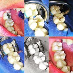 Substituição de restaurações insatisfatórias nos dois últimos molares. (46 e 47) #odonto #esteticadental #dentistica #resina #escultura #dentista #dentistry #restauracao #odontolove #odontologia by gutogerin Our General Dentistry Page: http://www.lagunavistadental.com/services/general-dentistry/ Google My Business: https://plus.google.com/LagunaVistaDentalElkGrove/about Our Yelp Page: http://www.yelp.com/biz/fenton-krystle-dds-laguna-vista-dental-elk-grove-3 Our Facebook Page…