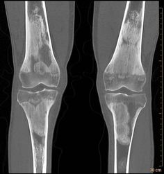 Skeletal involvement in Erdheim Chester Disease (a non-langerhan's cell histiocytosis) with classic appearance of symmetrical metaphyseal sclerosis and corresponding increased uptake on Tc-MDP bone scan.