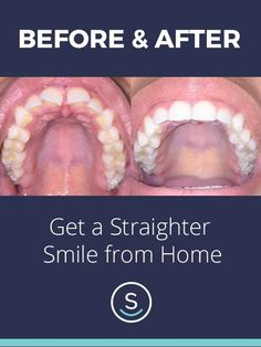 You can finally get the smile you've always wanted for up to 70% less than other brands with SmileCareClub, all from home. See how it works and get started with your free smile assessment and risk-free evaluation today!