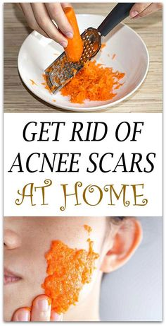 A perfect skin is every woman's dream, but it is not easy to obtain it. See how you can get rid of the acne scars with carrots.