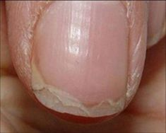 This is what peeling nails look like. ~ loodie loodie loodie: Nail Hardeners: Are formaldehyde based hardeners right for you? Doctors at the International Council for Truth in Medicine are revealing the truth about diabetes that has been suppressed for ov Health Remedies, Home Remedies, Natural Remedies, Pale Nails, Peeling Nails, Split Nails, Ongles Forts, Nail Problems, Nail Hardener