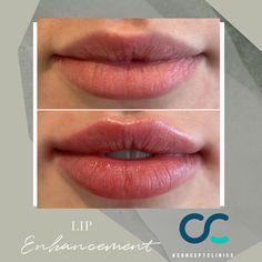 Dermal Fillers, Lip Fillers, Lip Injections, Lip Plumper, Cosmetic Clinic, Lip Augmentation, Cosmetic Treatments, Lip Shapes