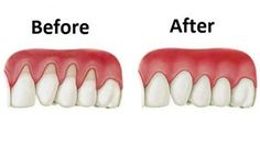 Are Your Gums Receding? Try Putting THIS In Your Mouth via Providr.com