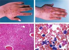 Neutropenia is a blood disorder where the body has an excessively low number of one type of white blood cells known as neutrophil granulocytes, or neutrophils,. Around 50 to 70% of the white blood cells circulating around the body are made up of neutrophils. #neutropenia #blooddisorders #medicalook