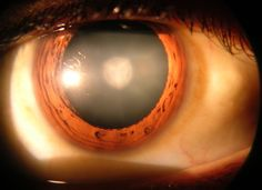 Did you know that 22 million Americans over the age of 40 have #cataracts? Learn more about artificial lens implants here.