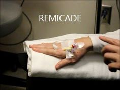 Rheumatoid Arthritis Treatment: REMICADE INFUSION - WATCH VIDEO HERE -> http://arthritisremedy.info/rheumatoid-arthritis-treatment-remicade-infusion/     *** how to treat arthritis ***  Personal experience receiving Remicade (Infliximab) infusions over last year. Remicade is a TNF-a blocker that works similar to Enbrel, Humira and Simponi.  TNF alpha is associated with different types of inflammatory arthritis. Remicade is approved for use for...
