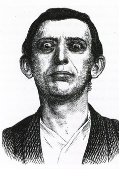 Endocrine diseases: Man with exophthalmic goiter. - An atlas of clinical medicine.