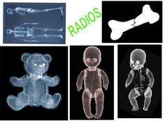 Very creepy, but also cool. Print these x-rays of Teddy and Dolly on transparency paper and use for imaginative (medical) play or fun! Community Helpers Preschool, Preschool Lessons, Activities For Kids, Abc Centers, Child Life Specialist, Doc Mcstuffins Birthday, Play Centre, Monster High, Dramatic Play
