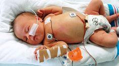 bebé semana 10 zwangerschapsdiabetes