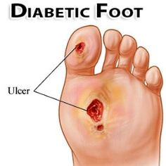 DIABETIC FOOT PROBLEMS CAUSES & SYMPTOMS