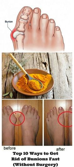 Top 10 Ways to Get Rid of Bunions Fast Without Surgery Foot issues like bunions can have a drastic impact on your pace and ultimately on your daily schedule. A bunion is defined as a bony bump that develops on the joint at the base of your big toe. Bunion Relief, Pain Relief, Health Heal, Health And Wellness, Corn On Toe, Bunion Exercises, Get Rid Of Corns, Bunion Remedies, Foot Remedies