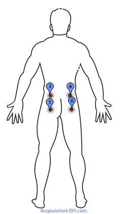Uretritis (micción Dolor)