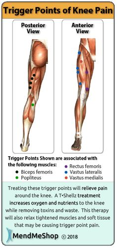 knee trigger points including biceps femoris, popliteus tendon, rectus femoris, vastus lateralis, vastus medialis