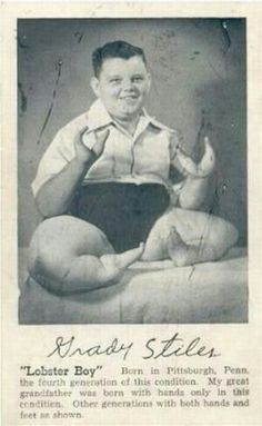 "Lobster Boy - another vintage circus ""freak"" He was a horrible abusive man to his family, ended up murdered."