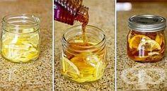 Направете си лек за зачервено гърло и настинка от лимони с мед и джинджифил - изображение