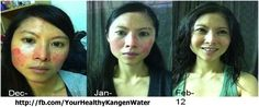 How Kangen Water can help people with psoriasis:  http://yourhealthykangenwater.com/how-kangen-water-can-help-people-with-psoriasis