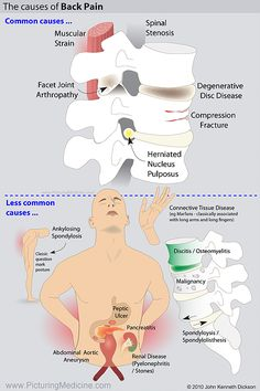 Causes of Back Pain Nursing Tips, Nursing Notes, Medicine Pictures, Doctor Of Osteopathic Medicine, Rn Programs, How To Pass Exams, Peptic Ulcer, Causes Of Back Pain, Surgical Nursing