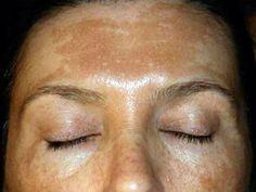 Как избавиться от пигментных пятен на лице быстро