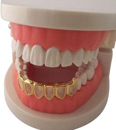 Iced Out 8 Row Gold Grillz Set incl Mold Kit. Set Contains Grillz For Both Upper & Lower Teeth. One Size Fits All - Fits To Any Mouth Size. Open Face Grillz, Mouth Grillz, Fang Grillz, Girl Grillz, Girls With Grills, Bottom Grillz, Tooth Gem, Grills Teeth, Gold Grill