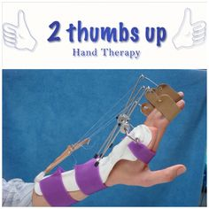 Custom dynamic splinting at 2 Thumbs Up hand therapy.