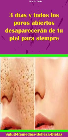 Skin care acne Skin care acne in 2019 Simple Wedding Hairstyles, Cool Hairstyles, Beauty Skin, Hair Beauty, Diy Crafts For Girls, Diy Christmas Decorations Easy, Good Hair Day, Acne Skin, Tips Belleza