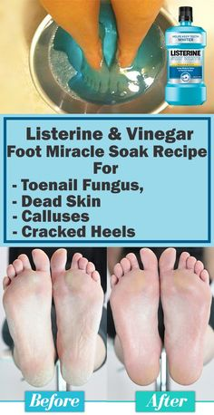 Listerine & Vinegar Foot Miracle Soak Recipe for Toenail Fungus, Dead Skin, Call. - Hard Skin Coconut Oil - Listerine & Vinegar Foot Miracle Soak Recipe for Toenail Fungus, Dead Skin, Calluses & Cracked Heels - Beauty Care, Beauty Skin, Beauty Hacks, Diy Beauty, Homemade Beauty, Beauty Ideas, Face Beauty, Homemade Facials, Listerine Foot Soak