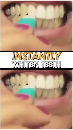 Using revolutionary nano technology, our whitening kit will instantly remove surface stains from your teeth, giving you an amazing white smile in seconds! Think of it as the Magic Eraser, except for your teeth! Source by norinaLuna Beauty Care, Diy Beauty, Beauty Skin, Beauty Hacks, Teeth Health, White Smile, Whitening Kit, Teeth Care, Skin Care