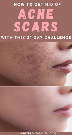 Try this 21 day challenge to cure acne scars naturally with home remedies Beauty Tips With Honey, Remedies For Glowing Skin, Dark Spots On Face, 21 Day Challenge, Skin Detox, Bad Life, Face Yoga, Lehenga Collection, Remove Acne
