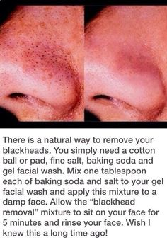 Kind of a gross pic, but helpful info.Easy at home blackhead remover! Use baking soda, salt, and any gel face wash of your choice! mix and leave on for five minutes. Puberty is coming! Beauty Care, Beauty Skin, Hair Beauty, Beauty Stuff, Beauty Makeup, Skin Tips, Skin Care Tips, Beauty Secrets, Beauty Hacks