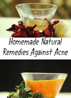 Homemade masks are a great remedy against acne and to get rid of scars left by acne. These recipes contains ingredients that help you to eliminate acne!