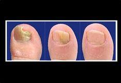 """Este súper truco curativo, aniquilará de manera efectiva los hongos que se alojan en las uñas """"onicomicosis"""", en poco tiempo podrás recuperar tus uñas y mostrarlas sin pena alguna. Esta receta casera es infalible para eliminar estas afecciones y es ideal para prevenir futuras manifestaciones de hongos en tus uñas. LEER MÁS:Descubre los beneficios increíbles …"""