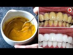 These are 2 most effective ways to use coconut oil to whiten teeth, fight bad halitosis, reduce plaque and gingivitis and prevent tooth decay Other helpful i. Teeth Whitening Remedies, Natural Teeth Whitening, Health Remedies, Home Remedies, Coconut Oil, The Cure, Beauty Hacks, Food And Drink, Homemade