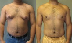 Get a flat manly chest that you deserve by doing these workouts #Manboob #moob