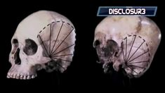 Starchild Skull- The SHOCKING DNA Results Are In....WATCH THIS! *HD*