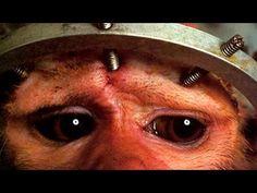 """""""El trasplante de cabeza será una realidad en menos de dos años""""   Colocar la cabeza de una persona en el cuerpo de otra parece el sueño de cualquier científico loco de película de terror pero, según el doctor Sergio Canavero, se trata de un procedimiento que, a día de hoy, es técnicamente posible."""